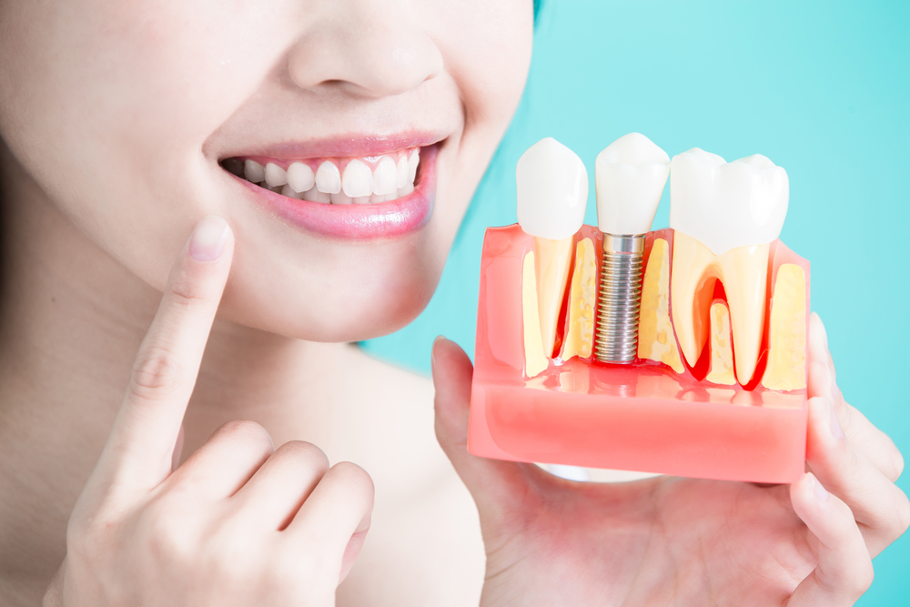 What will you choose-Dental Implants or Dental Bridges?